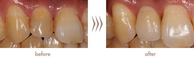 wp-症例implant